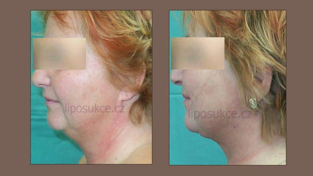 liposukce podbradku, obrázek před a po zákroku
