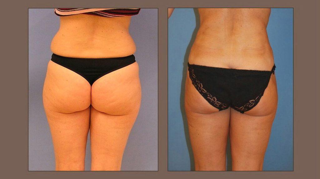 obrázek liposukce boků