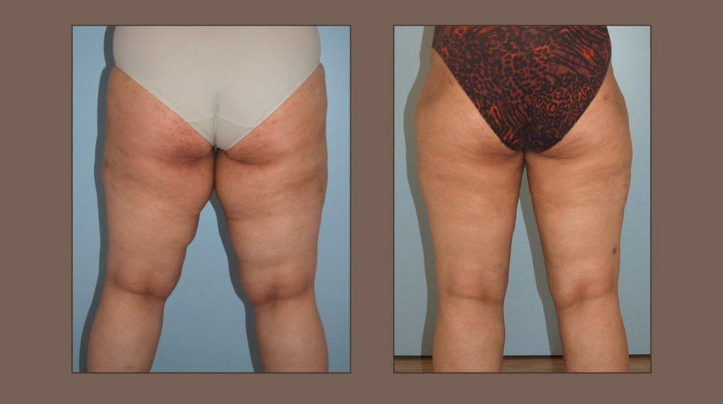 liposukce u obézní pacientky