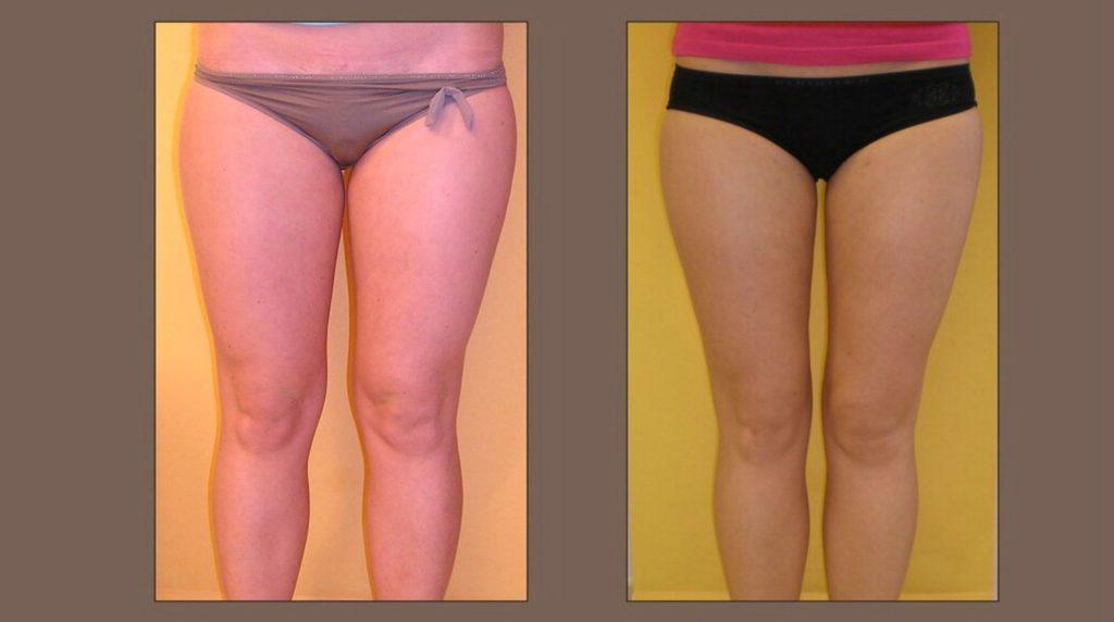 fotografie liposukce vnitřních stehen a kolen