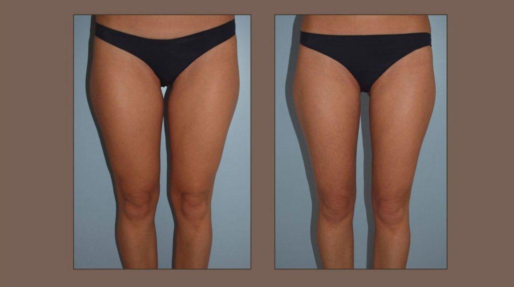 odsávání tuku -vnitřní stehna