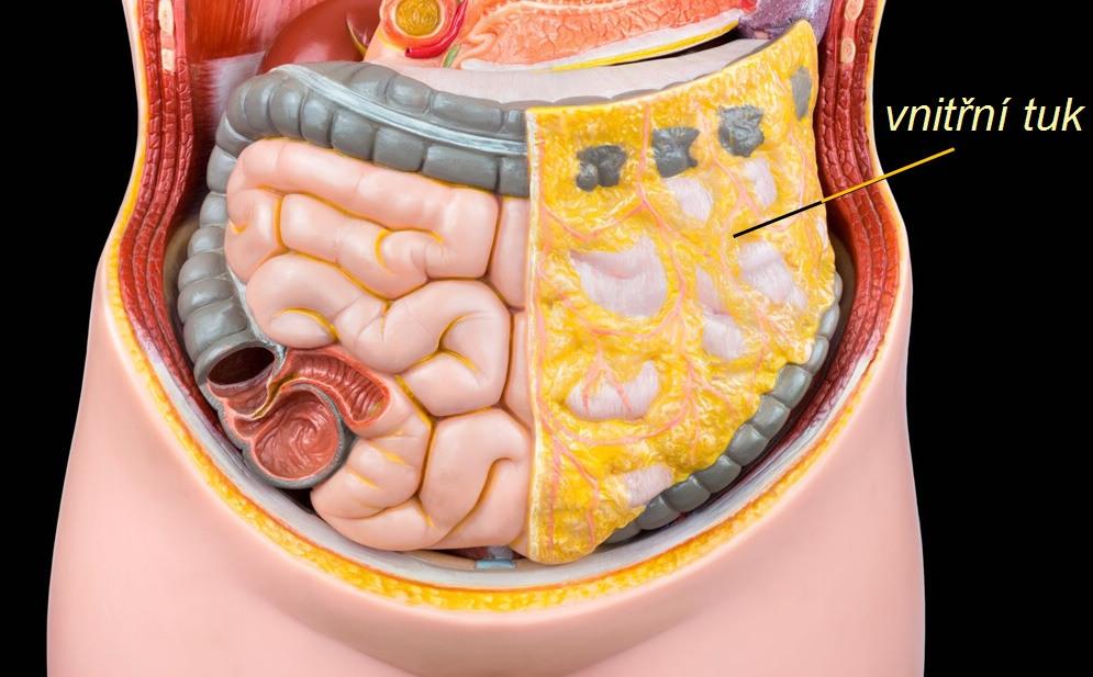 vnitřní tuk, liposukce
