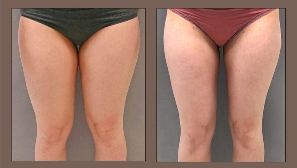 liposukce vnitřní strany nohou, odsávání tuku stehen